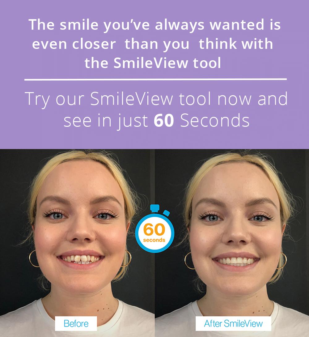 Orthodontics Sutton Coldfield | Straighten Teeth | Boldmere Orthodontist